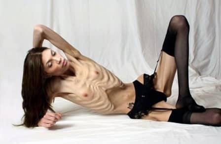 Признаки анорексии и ее последствия