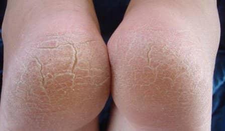 Трещины на пятках: лечение народными средствами