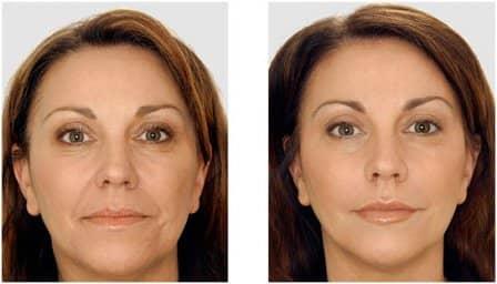 Контурная пластика лица - плюсы и минусы