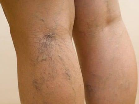 Симптоматика заболеваний сосудов нижних конечностей