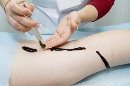 Противопоказания для гирудотерапии