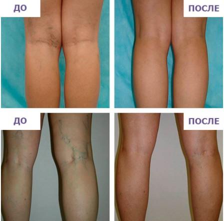 Варикоз на ногах: симптомы, причины, диета, лечение