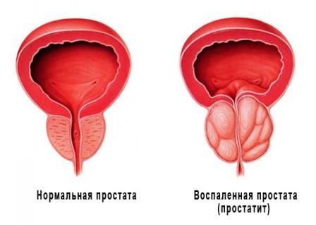 В помощь мужу: Причины возникновения и способы лечения простатита