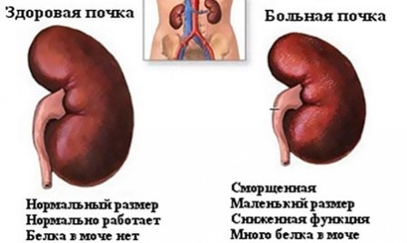 Симптомы и лечение заболеваний почек: нюансы