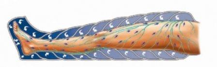 Как победить целлюлит и предотвратить варикозное расширение вен?