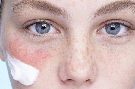 Обветренная кожа лица - что делать?