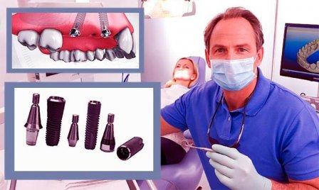 Имплантация зубов - нюансы лечения